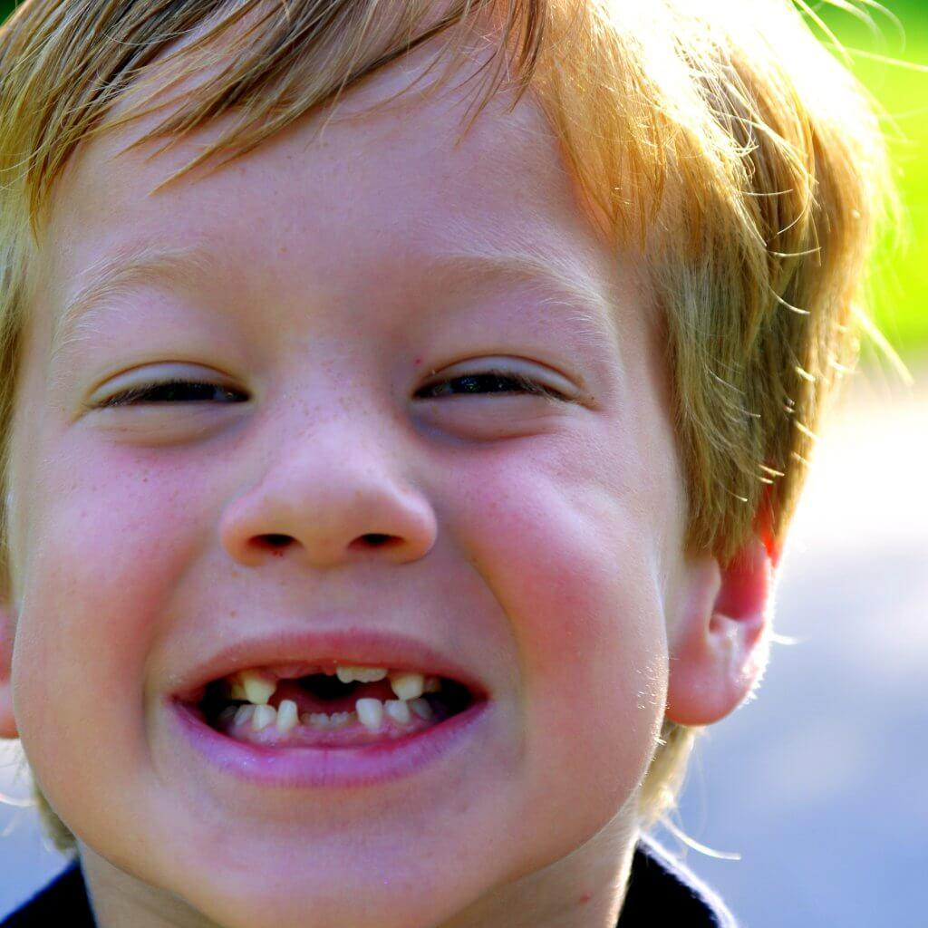 missing-teeth-i'm-losing-my-first-baby-tooth
