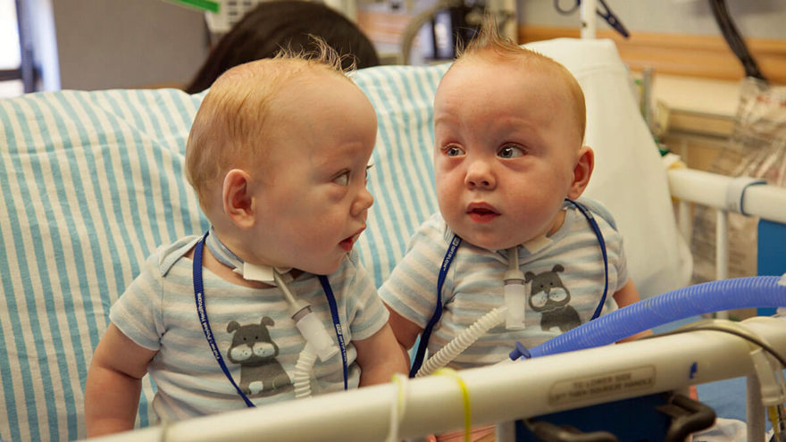 The Dangers of Twin Births